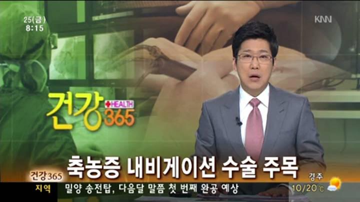 건강365-축농증, 내비게이션 수술 주목