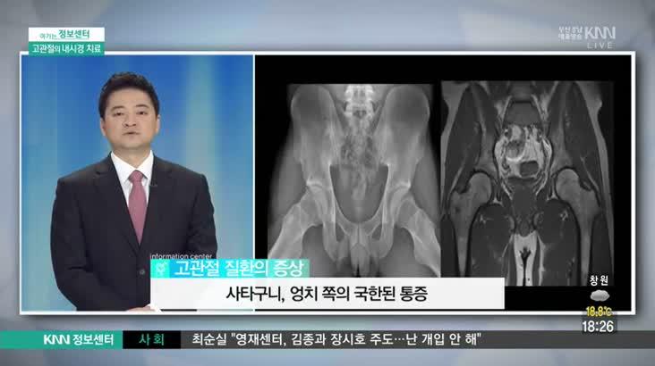 (04/28 방영) 고관절내시경(미래병원/사공은성)