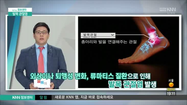 (06/27 방영) 발목 관절염 (명은병원 정형외과 / 성윤재 과장)