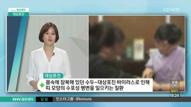 (07/18 방영) 대상포진 (체담한방병원/박도윤 원장)