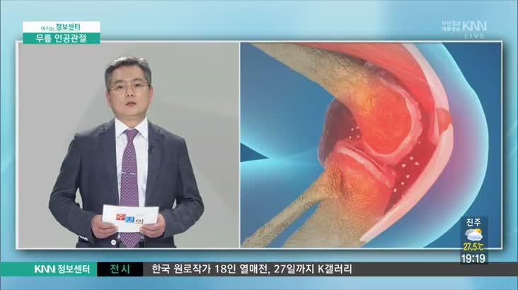 (08/18 방영) 무릎 인공관절 (구포성심병원 / 최태영 의무원장)