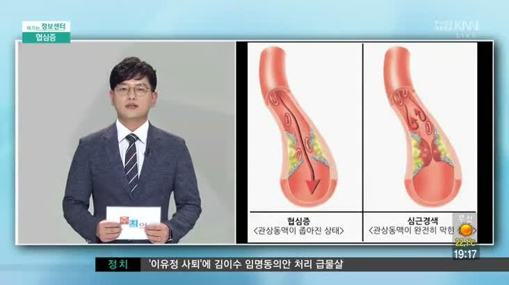 (09/01 방영) 협심증 (구포성심병원 / 신호철 과장)