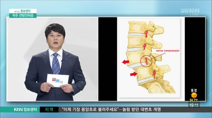 (09/18 방영) 척추 전방전위증 (척시원병원 / 강주영 원장)
