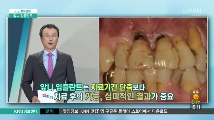 (09/28 방영) 앞니 임플란트 (센텀타워치과 / 김구호 원장)