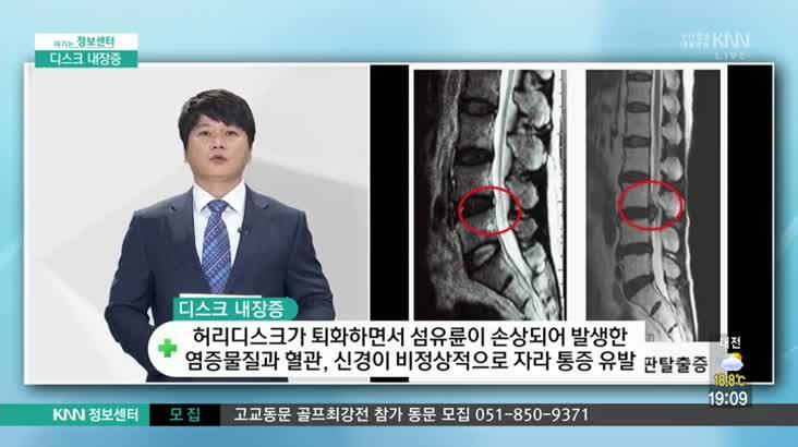 (09/29 방영) 디스크 내장증(척시원병원 / 강주영 원장)