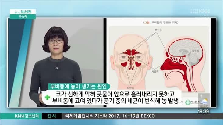 (11/13 방영) 축농증 (코호한의원 / 장복선 원장)