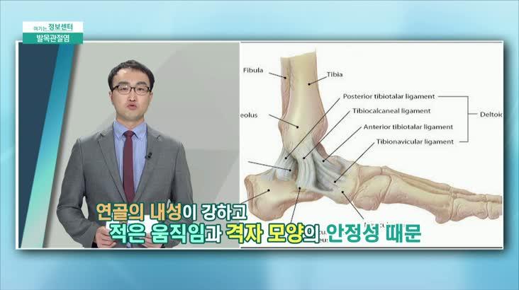 (12/11 방영) 발목관절염 (부산고려병원 관절센터 / 박종태 과장)