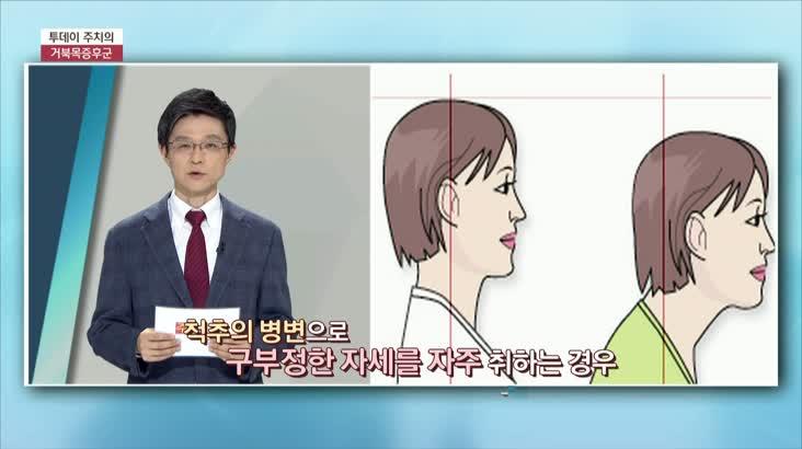 (01/12 방영) 거북목 증후군 (척시원병원 / 이석재 원장)