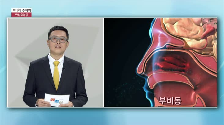 (01/19 방영) 만성축농증 (코호한의원 / 장재영 원장)
