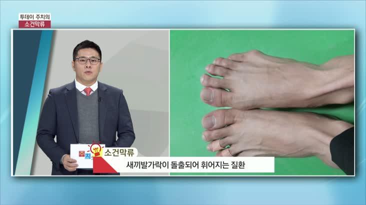 (01/22 방영) 소건막류 (명은병원 / 성윤제 과장)