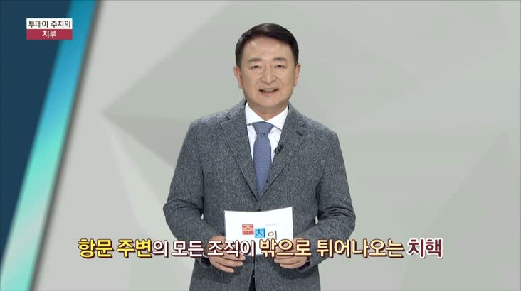 (01/25 방영) 치루 (웰니스병원 / 강동완 원장)