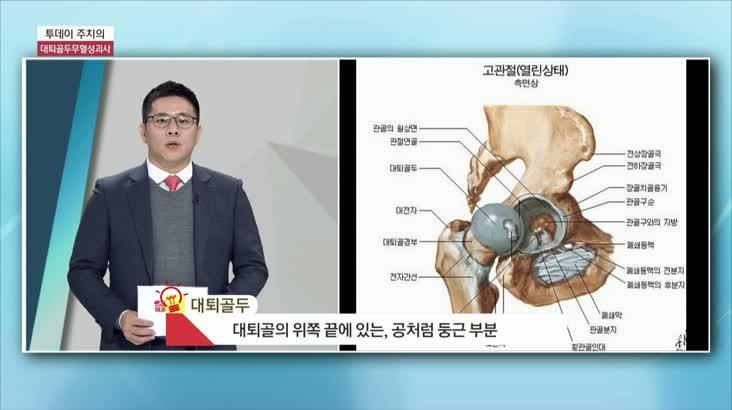 (01/29 방영) 대퇴골두 무혈성 괴사 (명은병원 / 성윤제 과장)