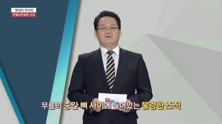 (03/20 방영) 반월상연골판 손상 (본병원 / 김기훈 원장)
