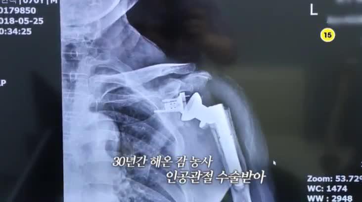 (06/21 방영) 메디컬 24시 닥터스