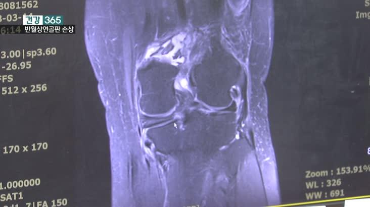 건강365-반월상연골판손상