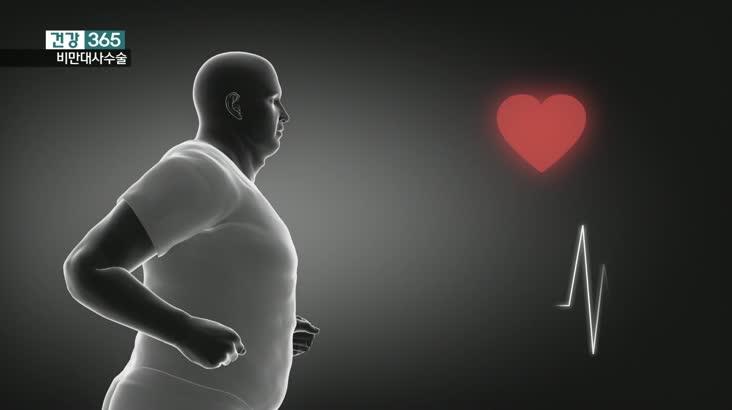 건강365-비만대사수술