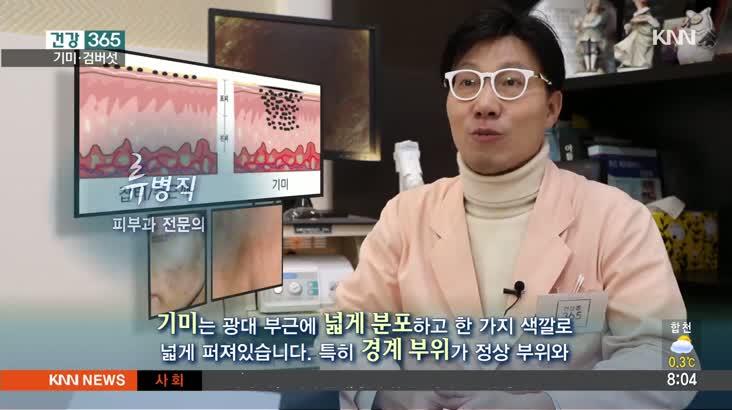 건강365-기미검버섯