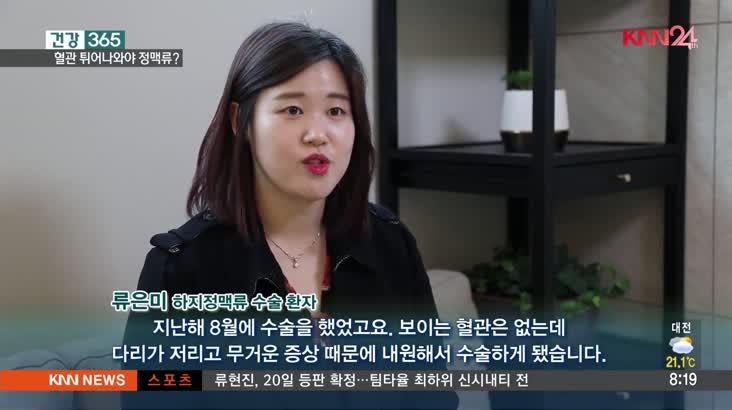 건강365(5/17, 혈관 튀어나와야 하지정맥류?)