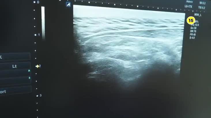 (06/03 방영) 메디컬 24시 닥터스 1부 – 척추 통증 처음부터 끝까지