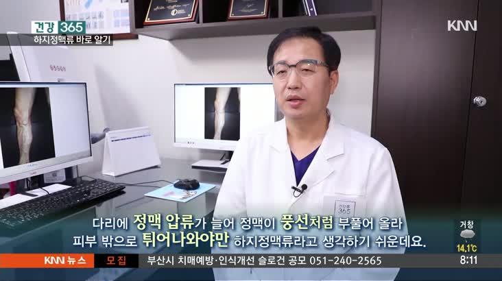 [건강365] – 하지정맥류바로알기