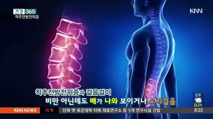 [건강365] 걸음걸이*체형만 봐도 척추전방전위증 파악?