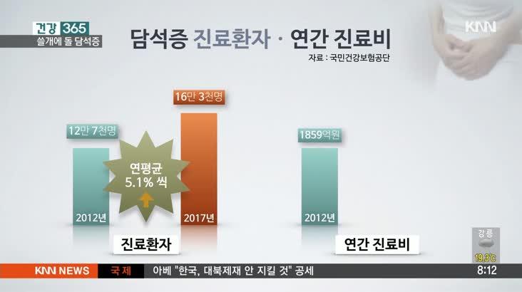 [건강 365] '쓸개에 돌' 담석증, 위장병 오인 금물!!