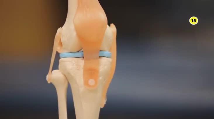 (07/22 방영) 메디컬 24시 닥터스 1부 – 통증이 보내는 적신호, 응답하라 무릎 건강