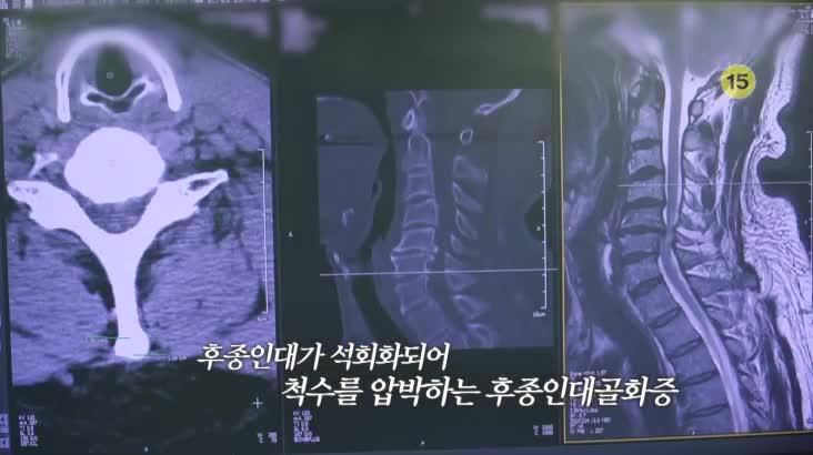(08/12 방영) 메디컬 24시 닥터스 1부 – 후종인대골화증, 조기 치료가 중요한 이유
