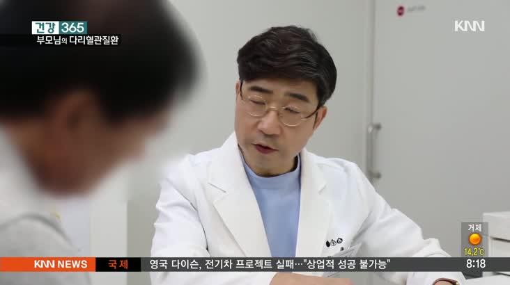 [건강365] 부모님들의 다리혈관질환 '하지정맥류'