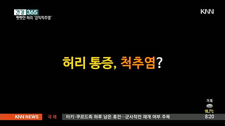 [건강365]-강직척추염