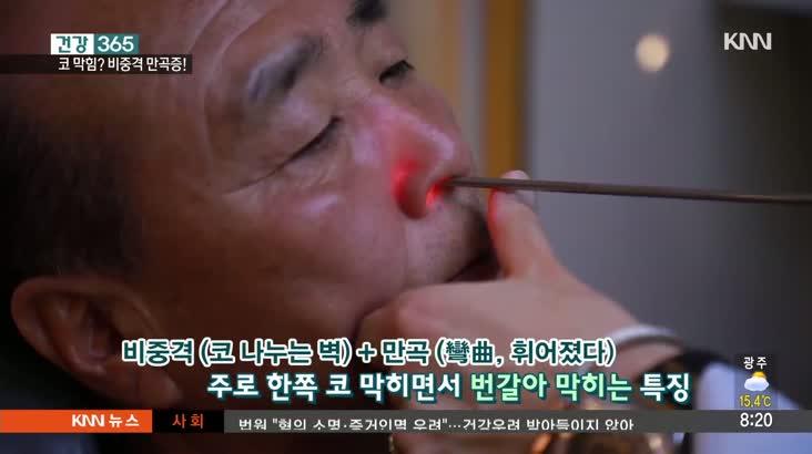 [건강 365] 지긋지긋한 코 막힘, 휘어진 비중격