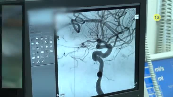 (11/02 방영) 시간과의 싸움, 뇌혈관질환 (이영서 / 신경외과 과장)