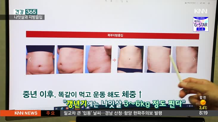 """[건강 365] 나잇살 슬기롭게 빼자 '지방흡입' 11/8 2'59"""""""