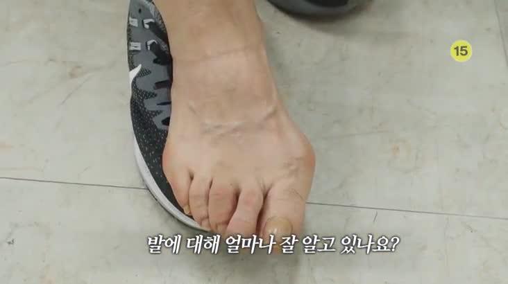 (12/02 방영) 메디컬 24시 닥터스 1부 – 건강한 발이 삶의 질을 높인다