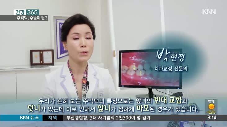 [건강365]-주걱턱, 수술이 답?