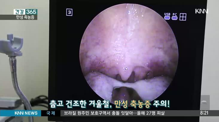 [건강 365] 축농증 수술
