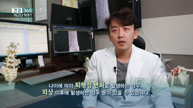 [건강365]-어긋난 척추 '척추전방전위증'