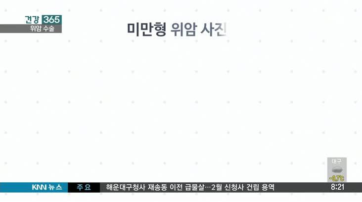 [건강365] 한국인 발병 1위 위암, 수술은 어떻게 할까?