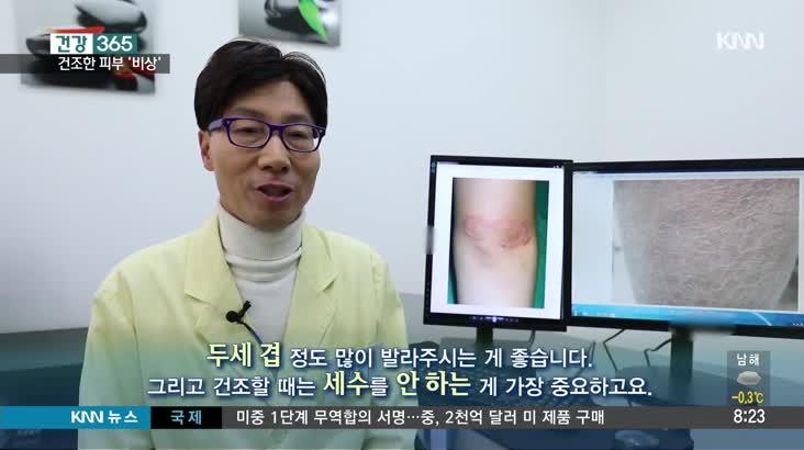 [건강365] 겨울철 건조한 피부, 해결책은?