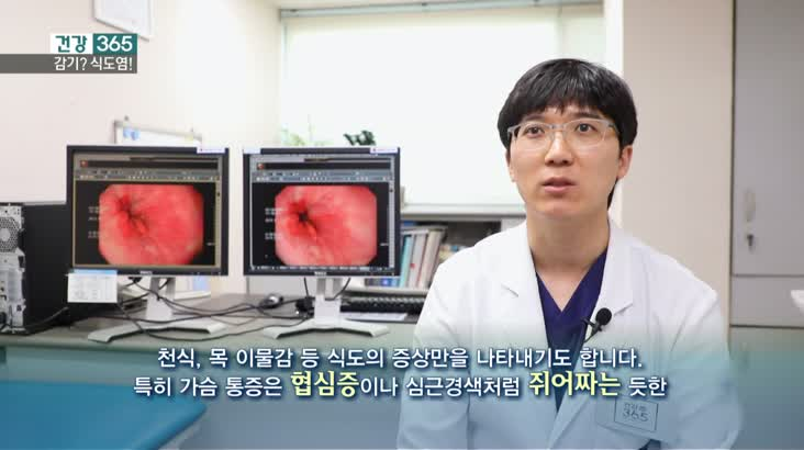 [건강365]-명절 과식, 식도염 조심! 2'32″-1/24 모닝 재방