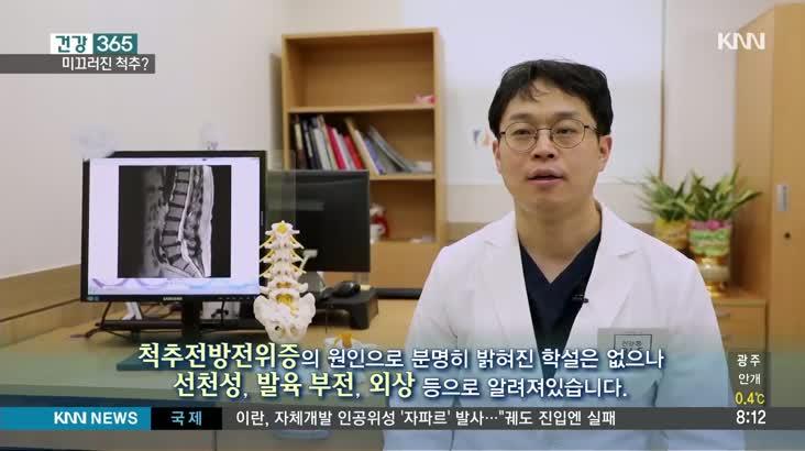 [건강365] 미끄러진 척추, 전방전위증