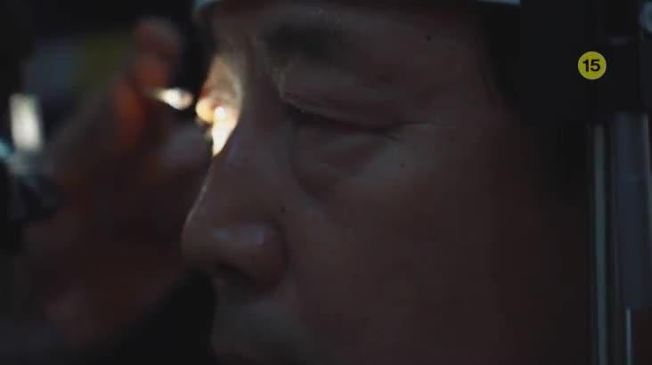 (02/24 방영) 메디컬 24시 닥터스 2부 – 중년의 눈가 노화를 잡아라