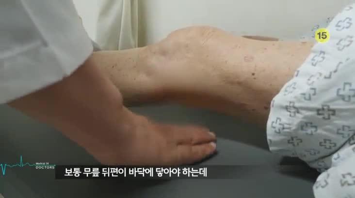 (03/16 방영) 메디컬 24시 닥터스 1부 – 통증없는 무릎으로 100세까지 걷자