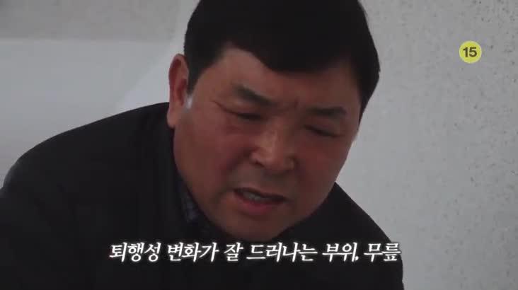 (04/13 방영) 메디컬 24시 닥터스 – 관절염 주의보 무릎 건강 되찾기