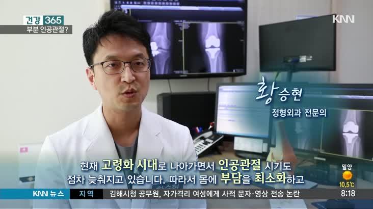 [건강365]-인공관절, 꼭 필요한 부분만!