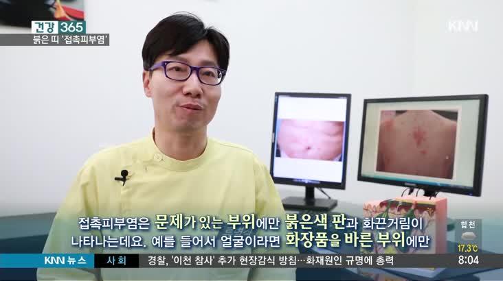 [건강365] 마스크에 가려운 피부, 접촉피부염