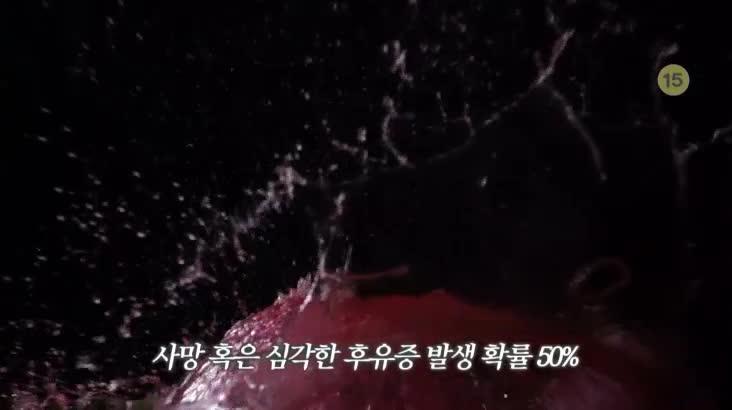 (05/04 방영) 메디컬 24시 닥터스 1부 -내 머릿속의 시한폭탄 뇌동맥류