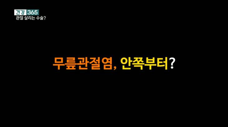 [건강365]-내 관절 살리는 무릎 수술?