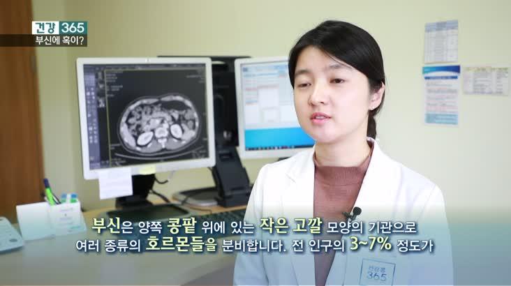 [건강365]-고혈압 부르는 부신 혹?