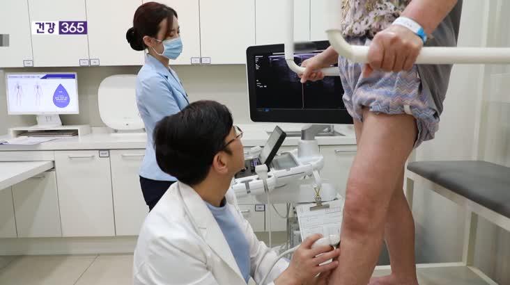 [건강365]평생가는 하지정맥류, 참다가 병 키운다